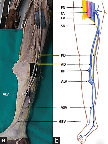 Figure 1: Gross morphology (a) with a comparative schematic diagram (b) showing the bifurcation of the great saphenous vein into anterior and posterior divisions; the presence of anomalous superficial vein. Knee perforator vein and anterior leg veins draining into anterior division. FV=Femoral vein, FN=Femoral nerve, FA=Femoral artery, SN=Saphenous nerve