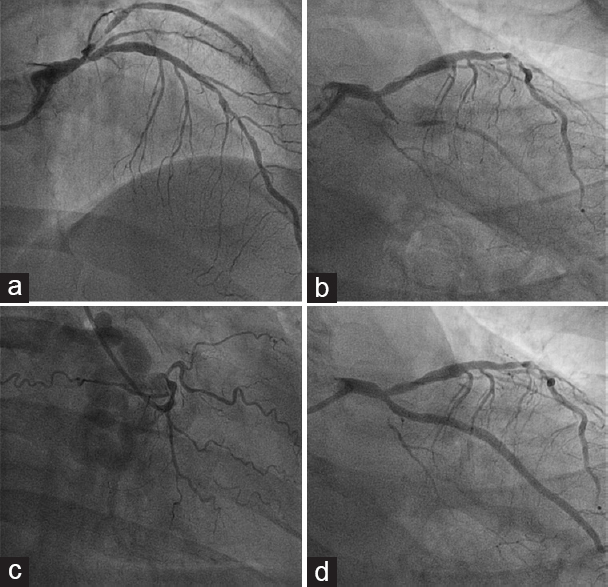 Figure 2: Urgent angiography that demonstrated critical lesion of mid-distal anterior descending artery, occlusion of distal apical recurrent anterior descending artery, and thrombotic subocclusion of a first proximal obtuse marginal, as culprit lesion (a and b); occlusion of the right coronary artery at the proximal segment (c). Angiographic result after percutaneous coronary intervention of culprit lesion (d)