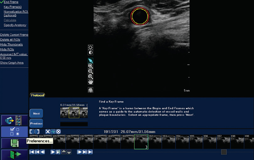 Figure 2: Vascular Plaque Quantification Software Offline (PACS) advanced analysis for total plaque volume and maximum percentage area reduction definition