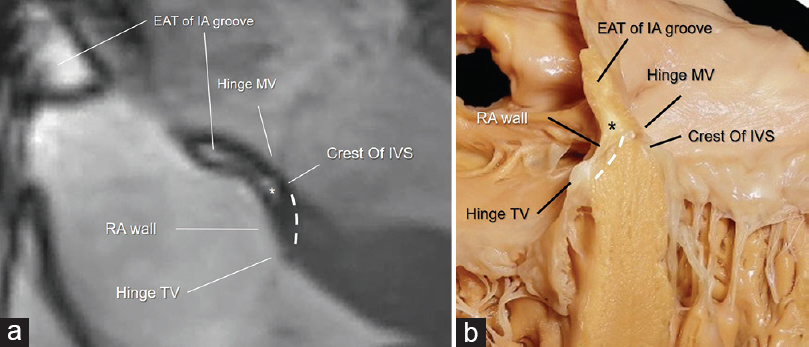 "Figure 3: (a) CMR SSFP still frames showing the AVS (dotted line) sited in between the hinge of TV and the hinge of MV. The image clearly shows the EAT (asterisk) in between the RA wall and the crest of IVS. This particular anatomical arrangement has been named ""atrio-ventricular muscular sandwich."" (b) Anatomic specimen showing the offset arrangement between the hinges of the tricuspid and mitral valves (arrows), the AVS (dotted line), and the EAT (asterisk) (see text). IA = Interatrial. AVS = Atrioventricular septum, CMR SSFP = Cardiac magnetic resonance steady-state free precession, TV = Tricuspid valve, MV = Mitral valve, RA = Right atrial, IVS = Interventricular septum, EAT = Epicardial adipose tissue"