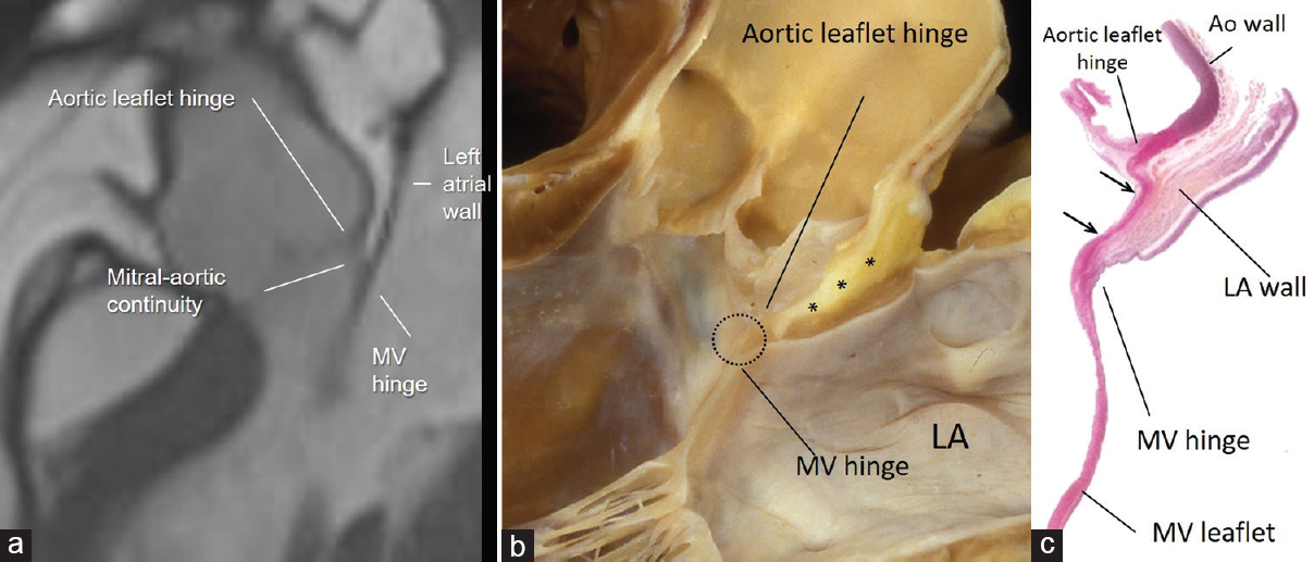 Figure 8: (a) CMR SSFP still frame in long axis view showing in patient with abundant EAT as the adipose tissue separates the aortic wall from the atrial wall in the transverse pericardial sinus. Panel (b) shows anatomic specimen displayed in similar view showing EAT (asterisk) between the outside of the aortic sinus and the anterior wall of the LA. Aortic-mitral fibrous continuity is circled. Panel (c) is a histologic section in similar orientation to show fibrous tissue (stained red between the two arrows). The LA wall (stained brownish) is on the outside but there is no ventricular muscle in between aortic and mitral leaflets (see text). LA = Left atrium, CMR SSFP = Cardiac magnetic resonance steady-state free precession, EAT = Epicardial adipose tissue