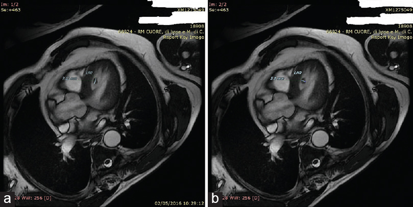 Figure 5: (a and b) Cardiac magnetic resonance imaging: Four-chamber view displays a residual ventricular thrombus. Steady-state free precession allows an excellent contrast between myocardium and blood within the heart (blood pool)