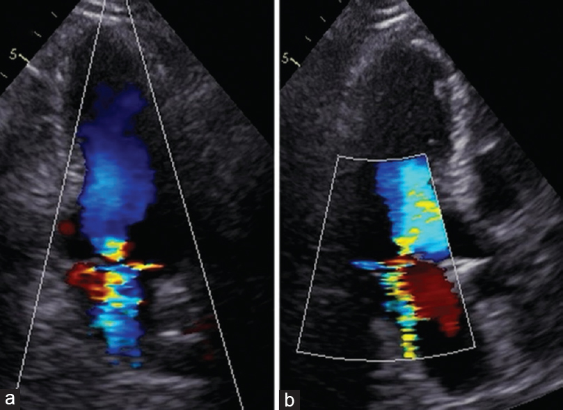Figure 2: Transthoracic echocardiography. (a) Mitral regurgitation with eccentric jet in transthoracic echocardiography (apical two-chamber view, a – apical three-chambers view, b)