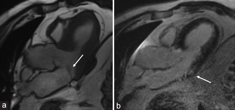 Figure 4: Mitral valve tethering and posterior wall scar, cardiac magnetic resonance. (a) Tethering of mitral valve leaflets in cine steady-state free precession apical long-axis view (arrow) (b) and an ischemic scar in the basal part of the posterior wall with late gadolinium enhancement (arrow)